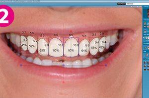 Smile Design Software