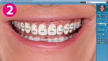 Smile Design Software